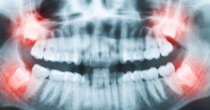 Wisdom-Teeth-Issues