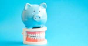 cost-of-the-dentist-in-nz