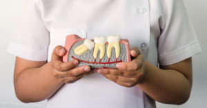wisdom-teeth-facts